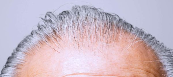 Can-Baldness-Be-Cured