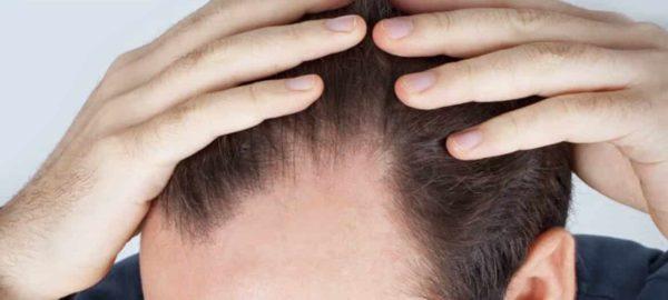 signs-of-alopecia
