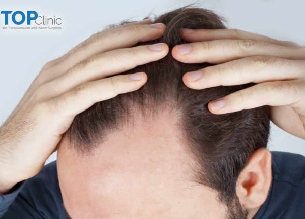 signs-of-alopecia