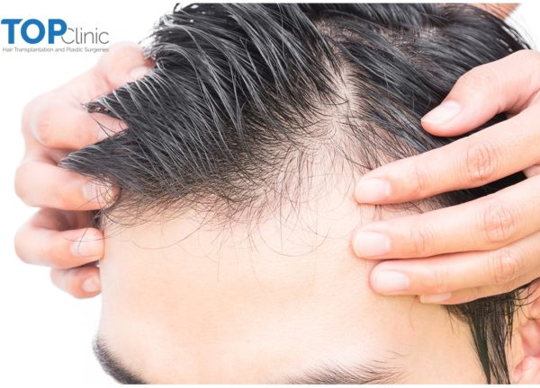 Hair-Transplant-Steps-All-What-You-Need-To-Know